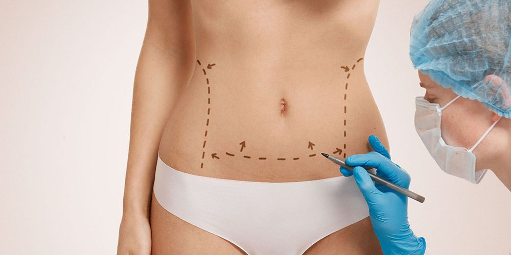 Tummy Tuck - Abdominoplasty - How do I know if I need one? - Flower Mound Plastic Surgery