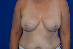 Sherri-C-Front-After