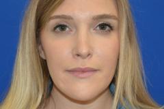 Allison-After-Front