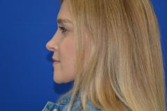 Allison-After-Side
