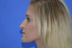 allison-before-side